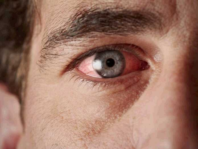 different causes and treatments for an eye cold